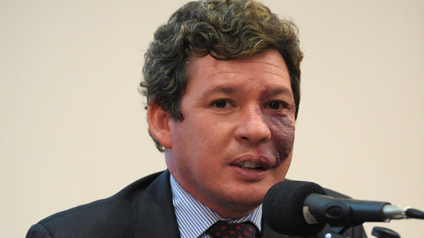 Deputado Reginaldo Lopes (PT-MG) (Alexandra Martins/Câmara dos Deputados/Divulgação)
