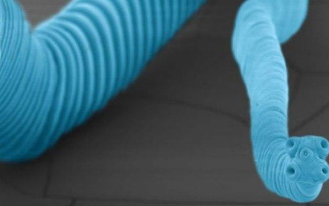 Acredita-se que até 75 milhões de pessoas sejam infectadas pela tênia-anã em algum momento da vida