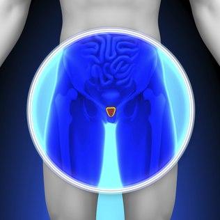 O câncer de próstata é o mais frequente entre os homens