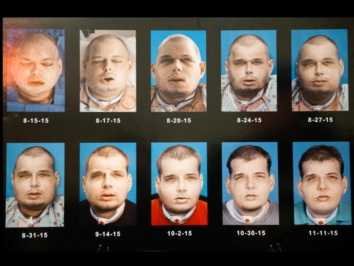 A sequência de imagens mostra a recuperação de Hardison durante os três meses após o transplante de face realizado em agosto, nos Estados Unidos