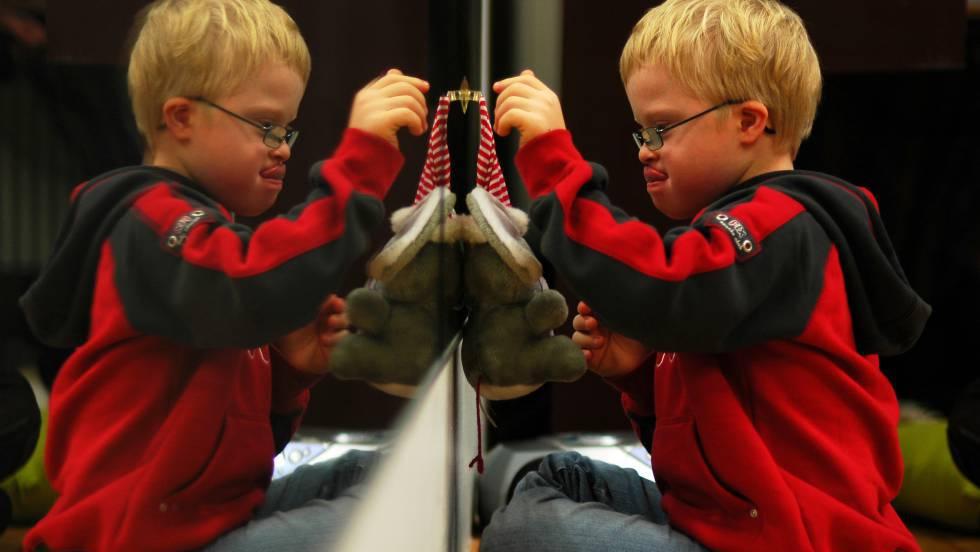 Cientistas desenvolvem primeiro tratamento eficaz para síndrome de Down