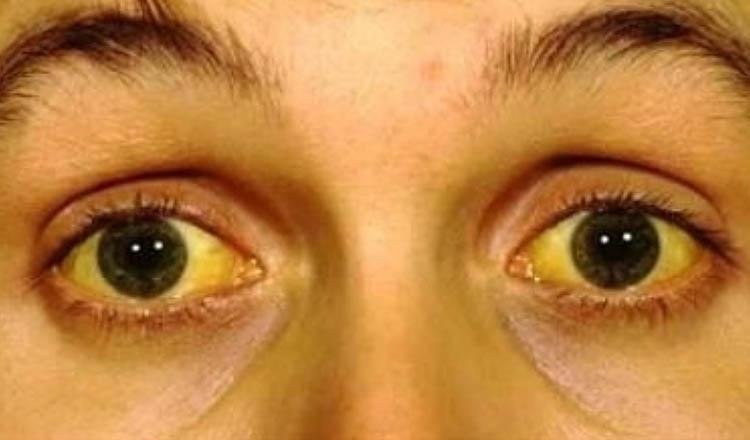 pessoa com febre amarela