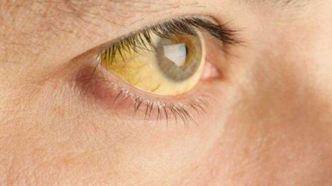 São quase 1000 casos suspeitos de febre amarela apenas em Minas Gerais